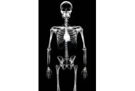 Skeleton X Ray